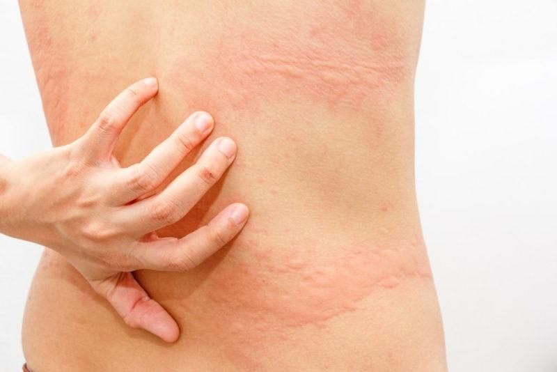 Bệnh lý mề đay cholinergic