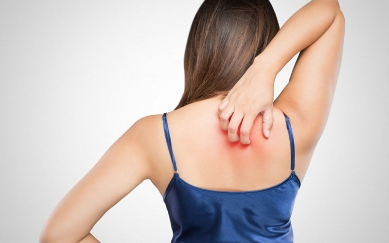 Ngứa lưng - tình trạng khó chịu mà ai cũng có thể gặp phải