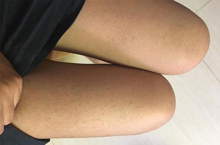 Bệnh dày sừng nang lông