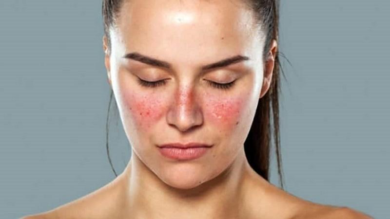 Lupus ban đỏ nếu không điều trị có thể gây ra nhiều biến chứng nguy hiểm