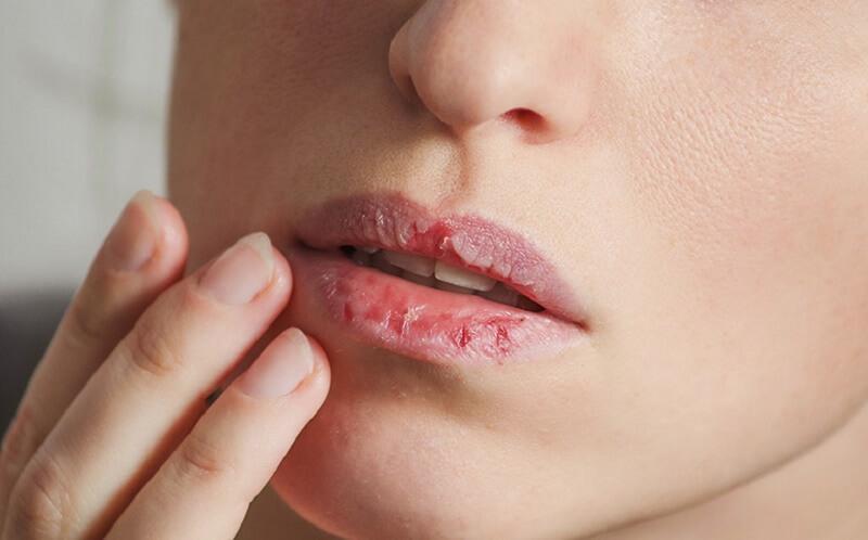 Môi khô ráp, bong tróc là triệu chứng tiêu biểu của viêm da cơ địa ở môi