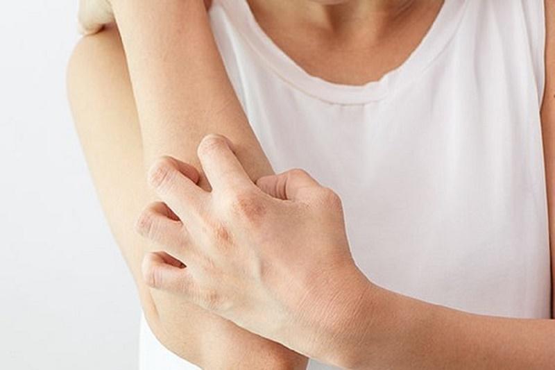Mề đay Cholinergic là nguyên nhân gây ra tình trạng ngứa ngáy sau khi tắm