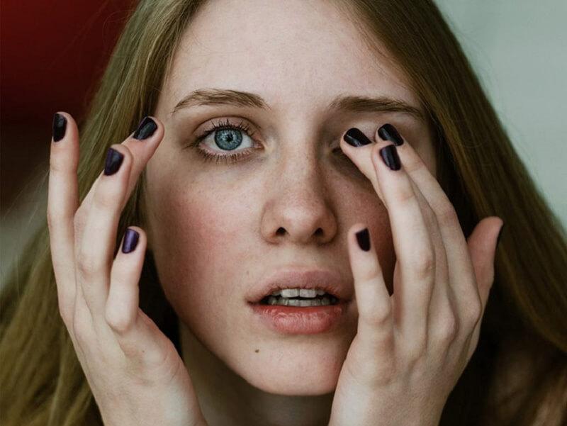 Viêm bờ mi có thể là nguyên nhân gây ra tình trạng ngứa vùng da quanh mắt