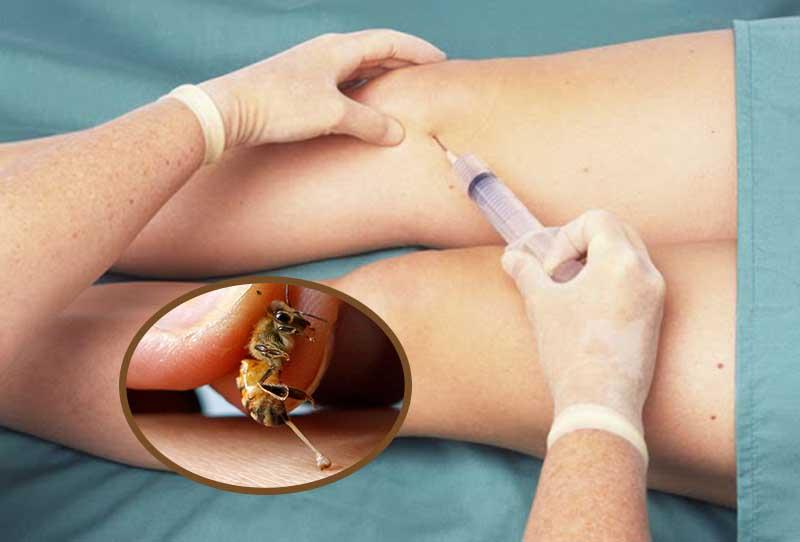 Tiêm thuốc có chứa nọc ong cần được thực hiện đúng cách và an toàn