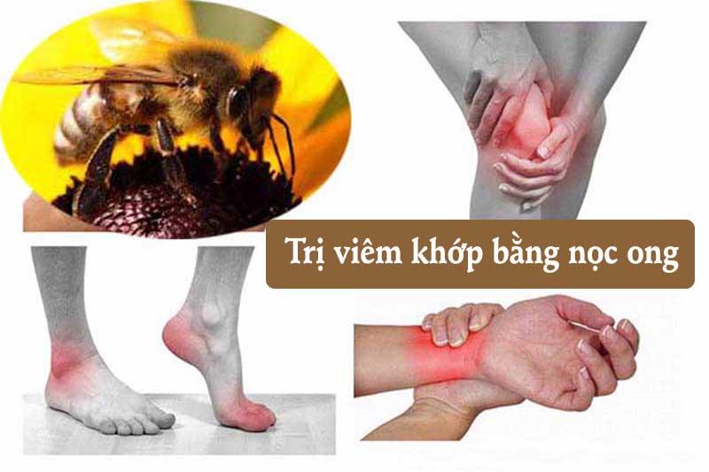 Nhiều nghiên cứu đã cho thấy nọc ong có khả năng làm giảm đau nhất định