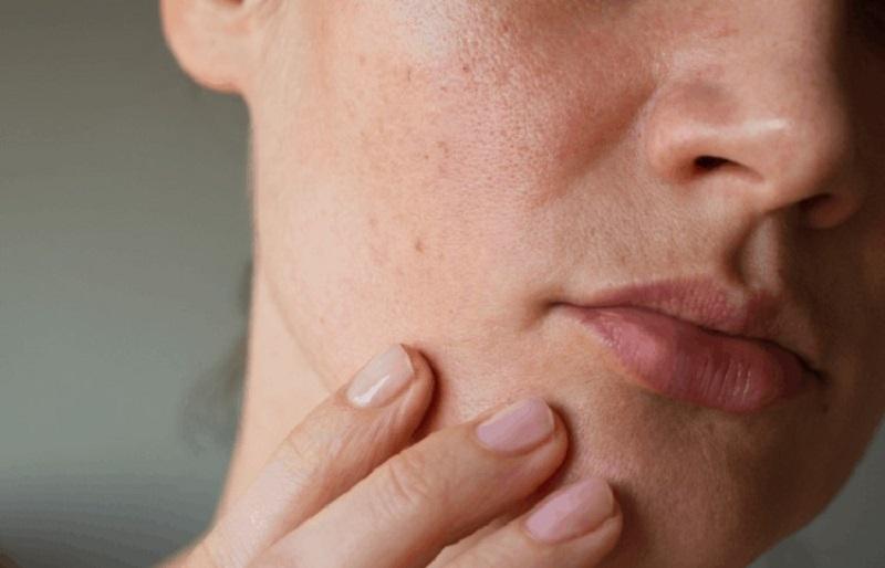 Da mặt bị đỏ rát và ngứa là do bệnh lý gì?