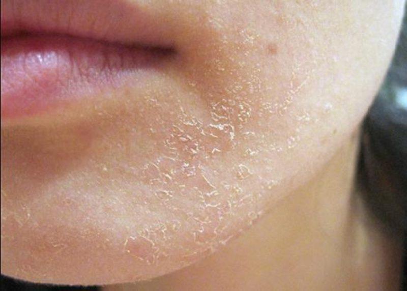 da mặt khô ngứa biểu hiện bệnh da liễu