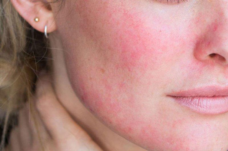 Mề đay gây nổi sần đỏ, ngứa ngáy trên da