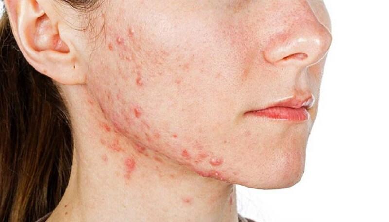 Da mặt bị ngứa và nổi mụn khiến nhiều người cảm thấy mất tự tin