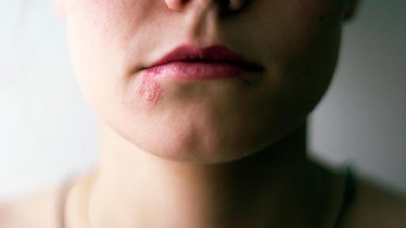 Zona thần kinh khiến da mặt bị ngứa và nổi mụn nước