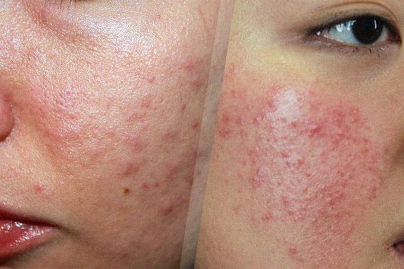 da mặt bị ngứa và sần sùi