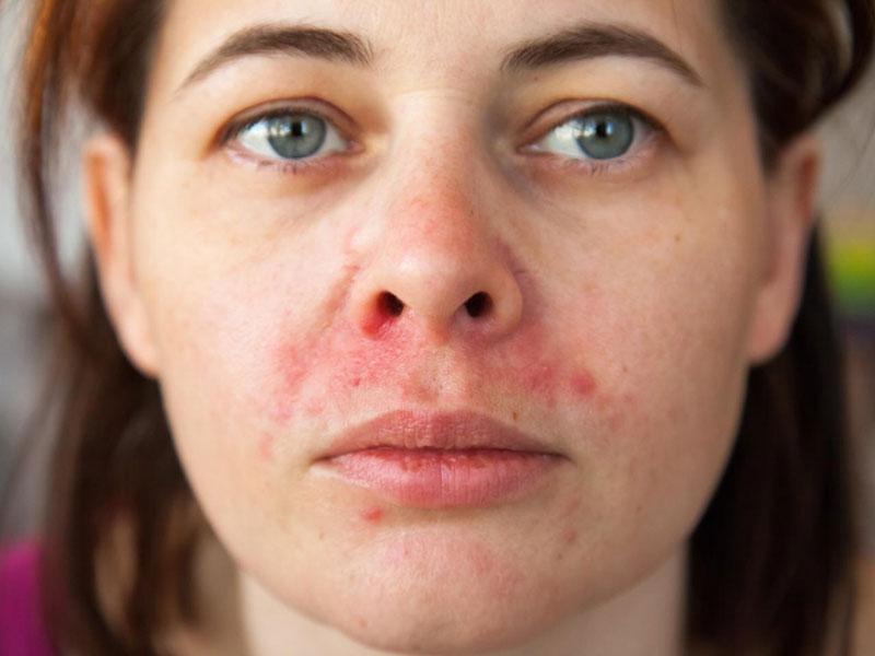 Bệnh mề đay khiến bạn bị ngứa da mặt, sần sùi