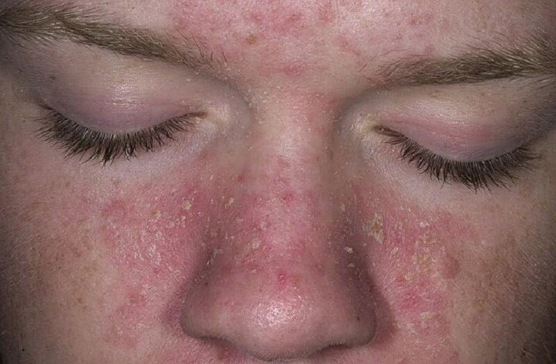 Da mặt bị ngứa và sần sùi ảnh hưởng vẻ đẹp của bạn