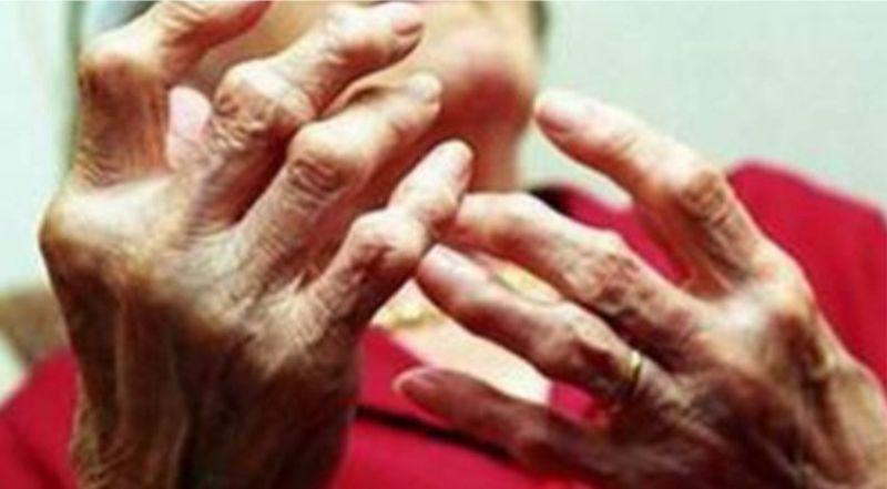 Thoái hóa khớp ngó tay là 1 trong những nguyên nhân khiến đầu ngón tay bị đau