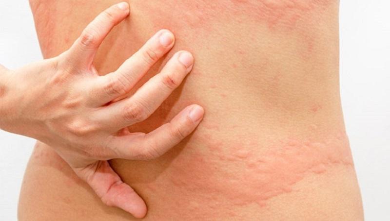 Ngứa da toàn thân gây ngứa ngáy khó chịu, nổi các nốt mẩn đỏ với kích thước khác nhau