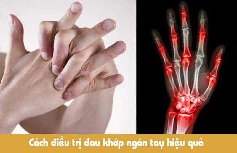 Đau khớp ngón tay nếu không được điều trị sớm, dứt điểm sẽ ảnh hưởng nhiều tới sức khỏe, đời sống của người bệnh