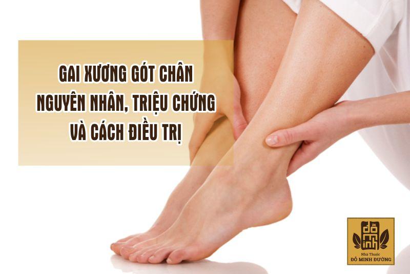 Gai xương gót chân còn được gọi là viêm cân gan bàn chân
