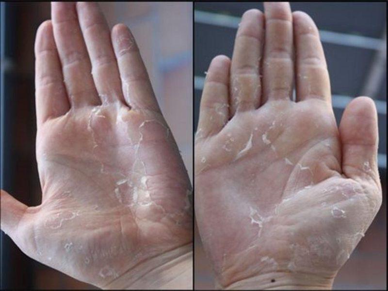 da tay bị ngứa và lột ra
