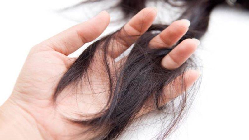 tóc rụng thành từng mảng