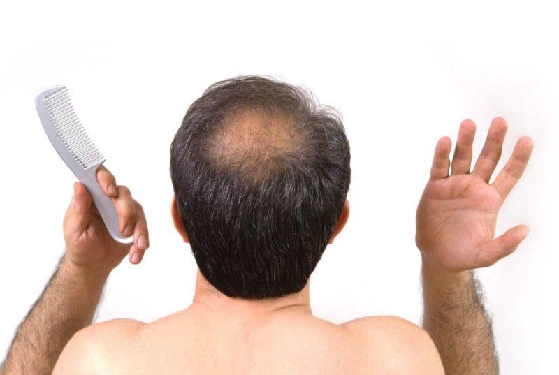 nam giới ngứa đầu rụng tóc