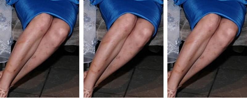 sẹo ngứa hai ống chân