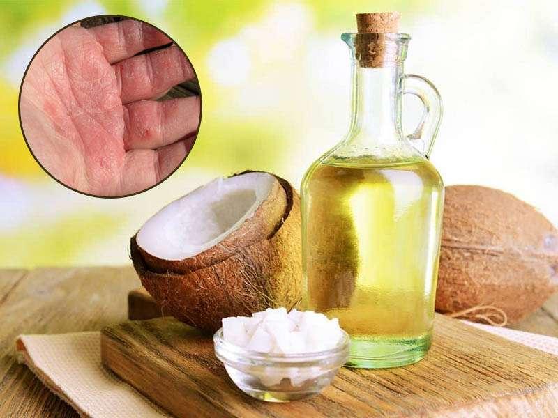 Thành phần acid lauric trong dầu dừa có khả năng kháng khuẩn cực tốt
