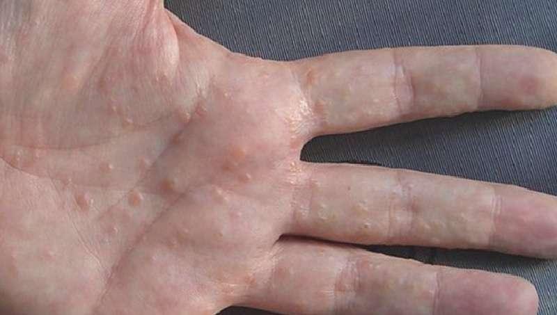 Ngứa kẽ chân, kẽ ngón tay do bệnh tổ đỉa