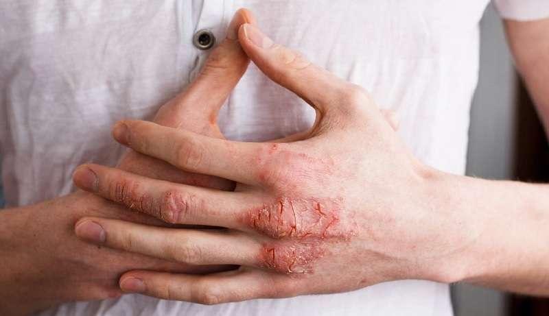 Bàn tay của người bị viêm da tiếp xúc