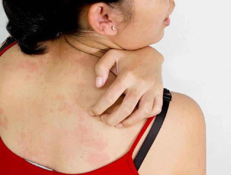 Ngứa da toàn thân do mề đay biểu hiện bằng các đám mẩn đỏ, dày sần trên da