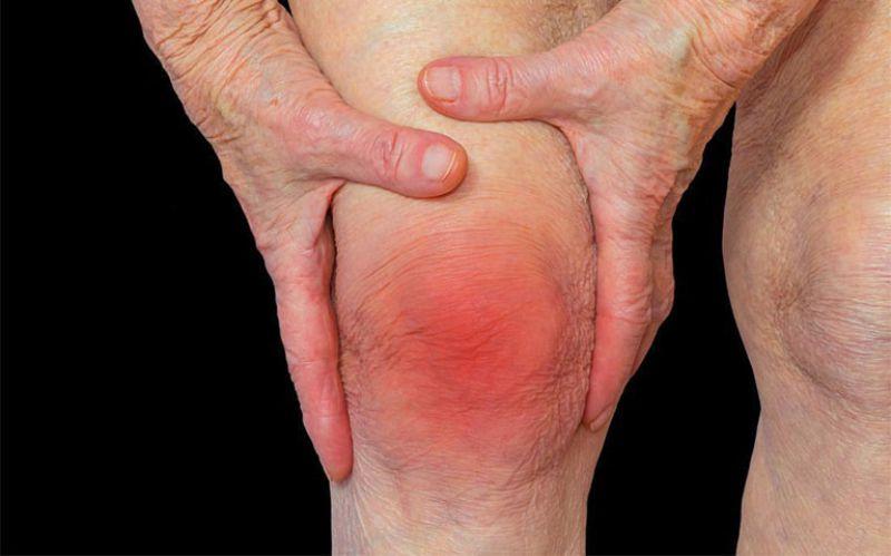 Viêm khớp gối gây ra nhiều biến chứng nguy hiểm