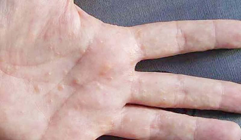 Triệu chứng mụn nước trên da tay của mỗi người có thể có sự khác biệt