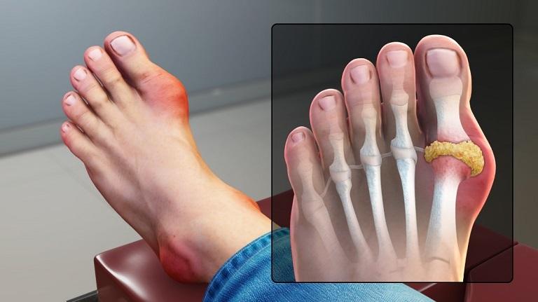 Bệnh Gout nếu như không được điều trị kịp thời sẽ gây ra nhiều biến chứng nặng nề
